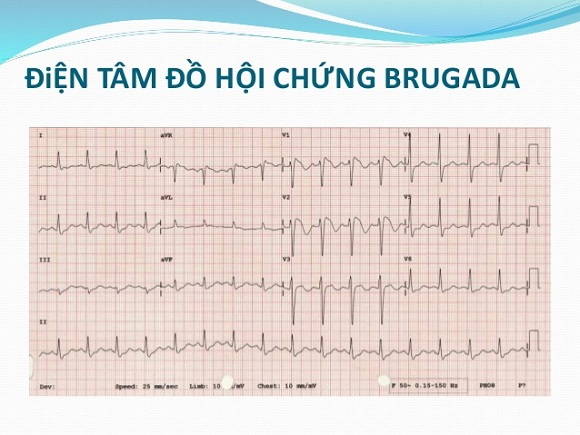 Hoi chung Brugada (2)