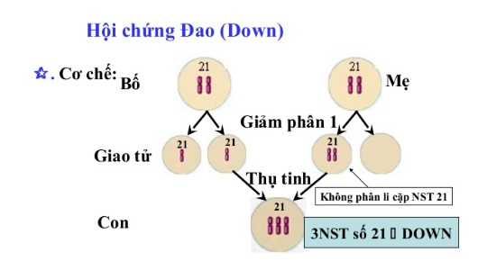 Hoi chung Down la gi (3)