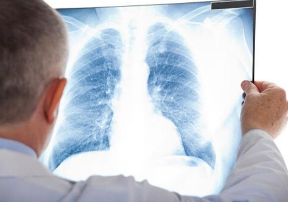 Chẩn đoán ung thư phổi