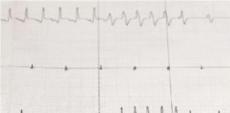 Rối loạn nhịp tim, hoặc nhịp tim bất thường, có nhiều nguyên nhân.