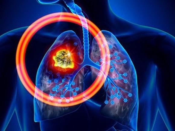Ung thư phổi không phải tế bào nhỏ