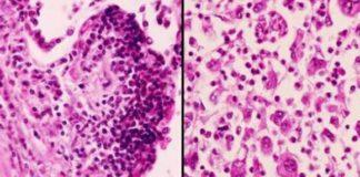 Ung thư phổi tế bào nhỏ và không phải tế bào nhỏ