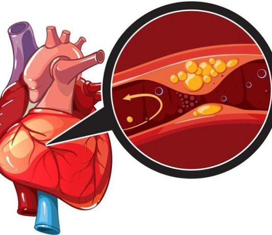 Bệnh cơ tim thiếu máu cục bộ