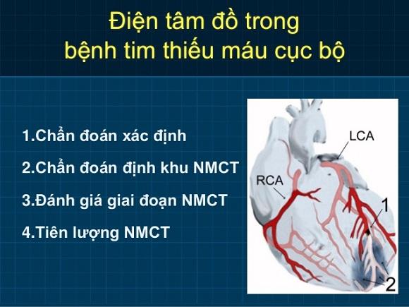 Chẩn đoán bệnh tim thiếu máu cục bộ bằng điện tâm đồ