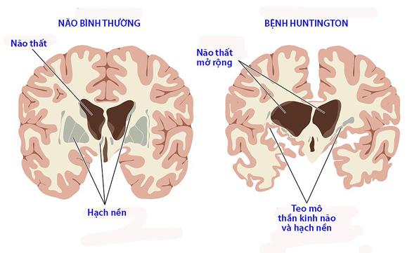 Bệnh Huntington - Ảnh 1.